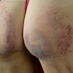 teen butt paddling bruises