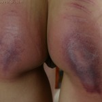 bruised bottom