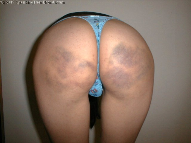 bruised butt from a high school paddling