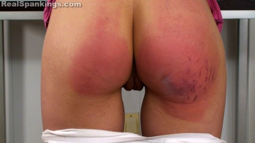 bruised bottom school girl
