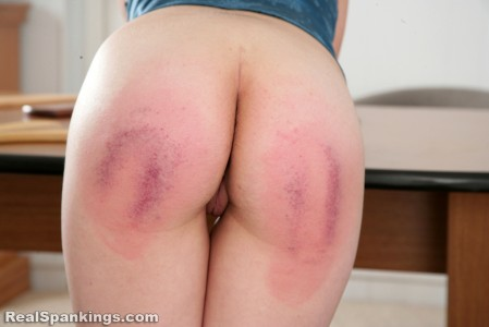 paddled on her bruised bottom